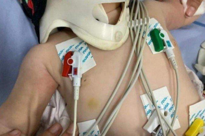 Médica chama polícia depois de atender bebê com mais de 30 lesões no corpo